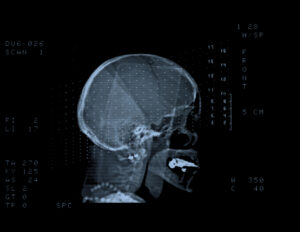 Head in a scanning device
