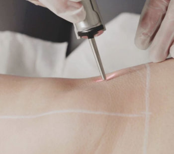 Up to 55% off Laser Hair Removal Courses 31 Jan