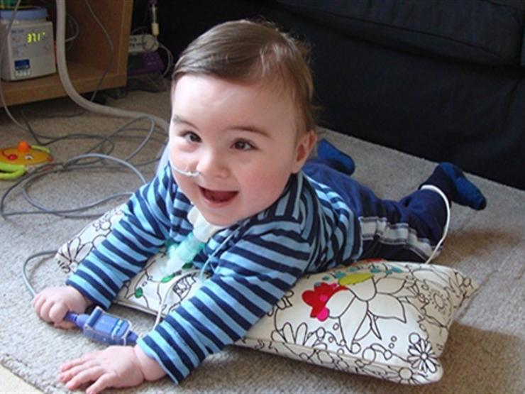 Baby boy lying on his front on a pillow, attached to medical equipment looking up and smiling at camera