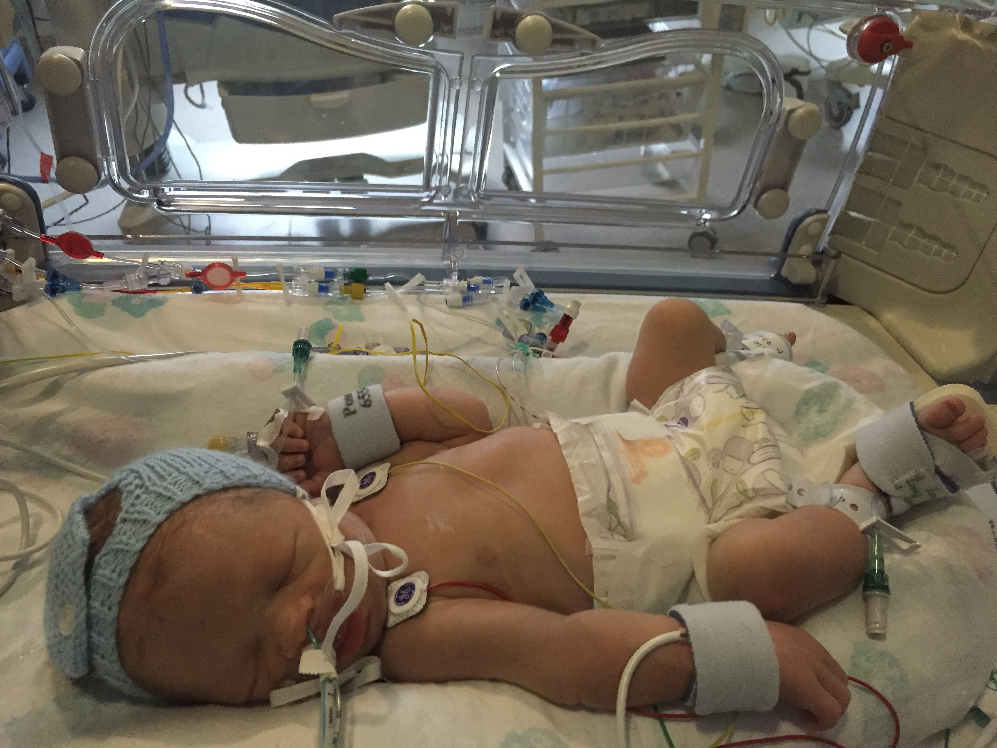 My wife battled cancer while my daughter was in SCBU