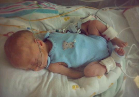 10 weeks too soon - Rachel's story | Bliss