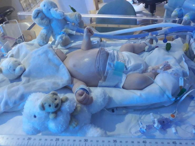 Baby Kane receives specialist care for NEC