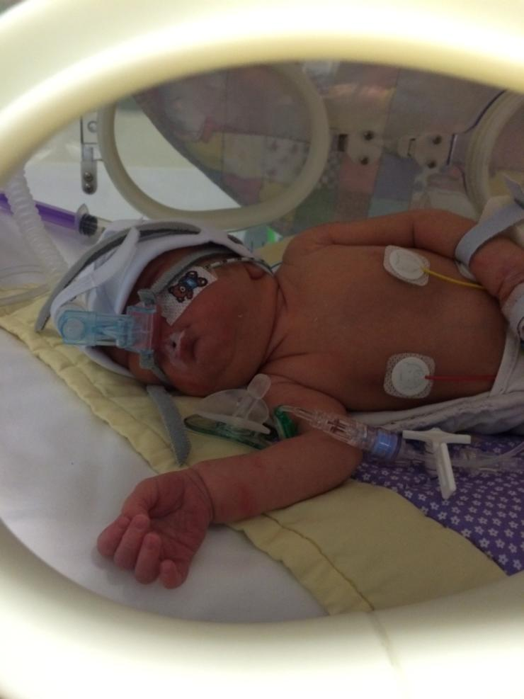 A photo of baby Polly in the incubator