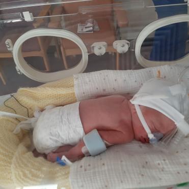 Elijah in incubator on oxygen