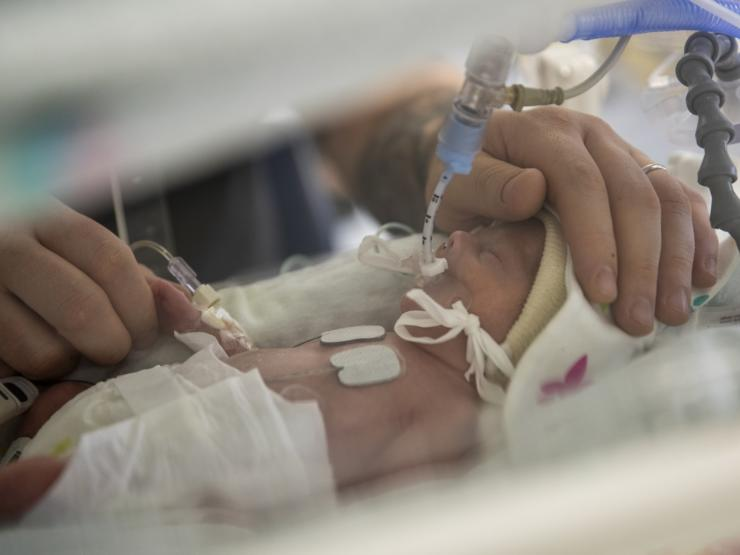 Baby with tube being comforted by parent's hands