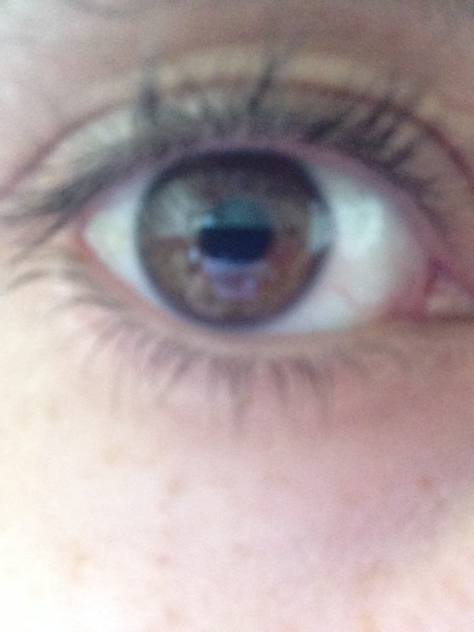 Right Eye