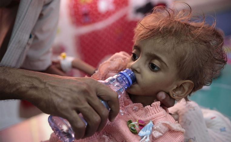 A father gives water to his malnourished daughter at a feeding center in a hospital in Hodeidah