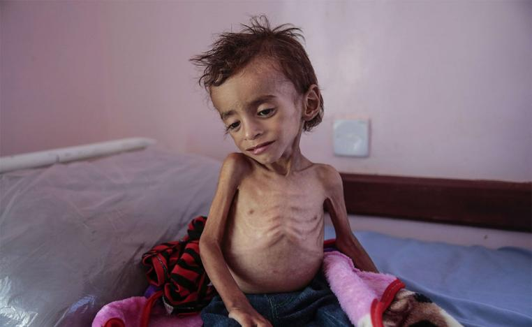 A malnourished boy sits on a hospital bed at the Aslam Health Center, Hajjah, Yemen