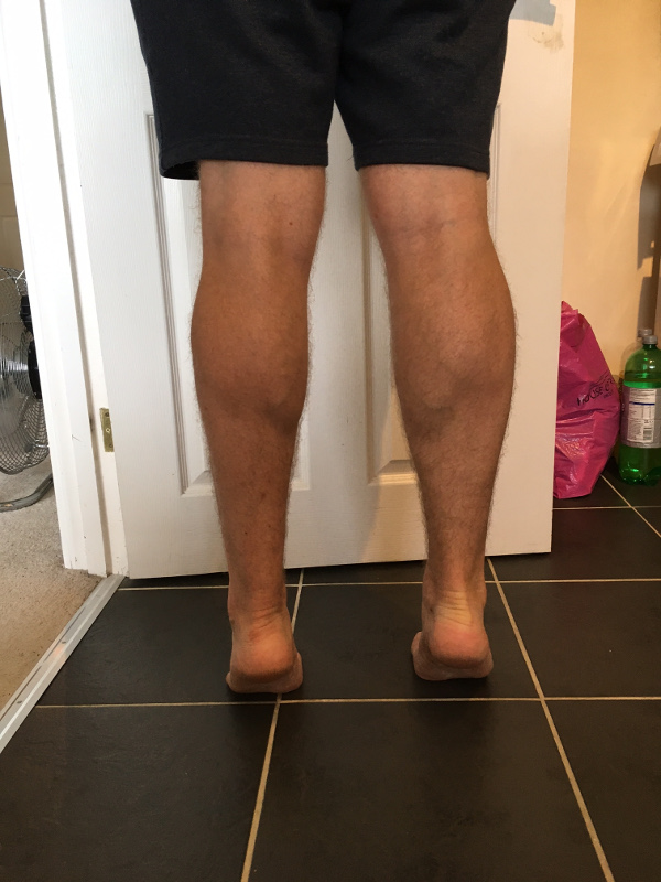 6 month lower-leg comparison
