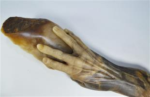 The Hand of Fannie Storr