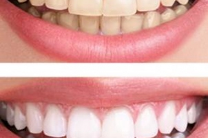 Advice on Simple Ways to Improve Your Smile - from Clinica Dental La Plaza