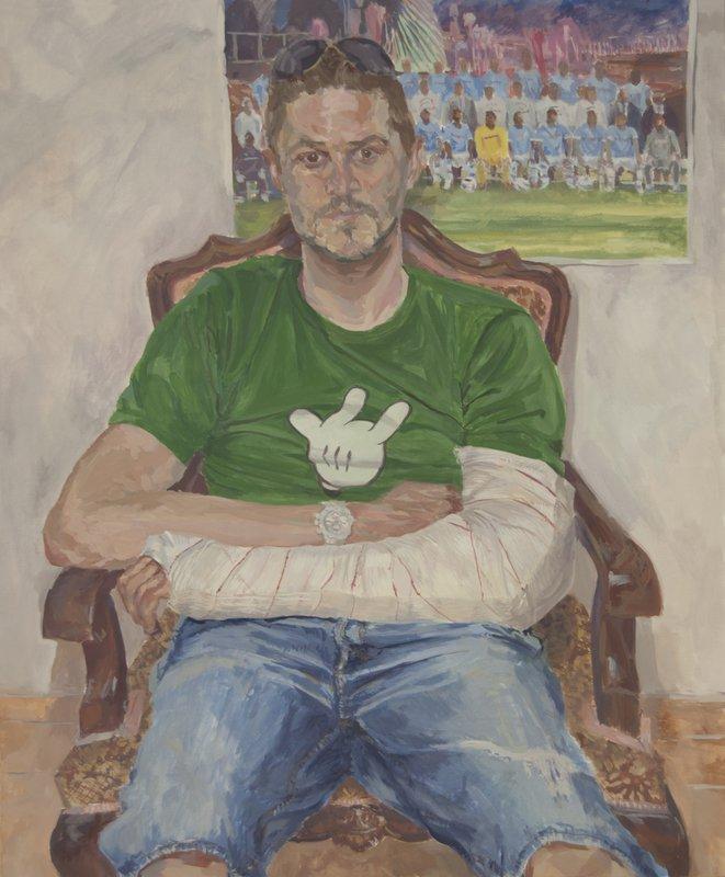 Man With Arm in Plaster<span>Copyright Josias Figueirido</span>