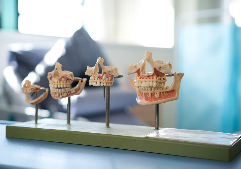 Models of human jaws and teeth