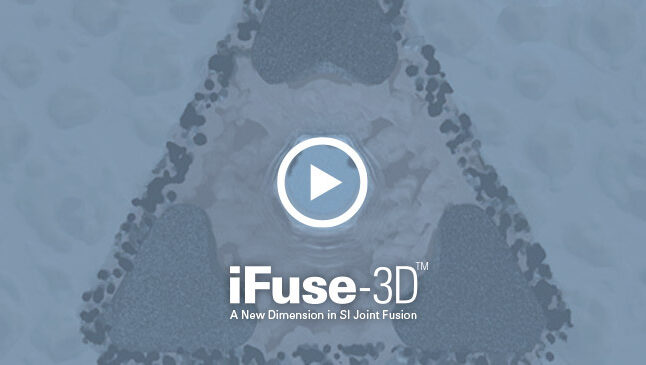 Ifuse 3d video cover
