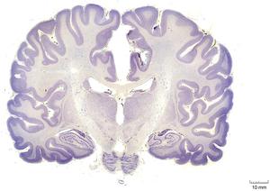 Human brain cortex